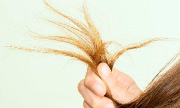 Brittle hair