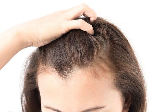Thinning hair advice